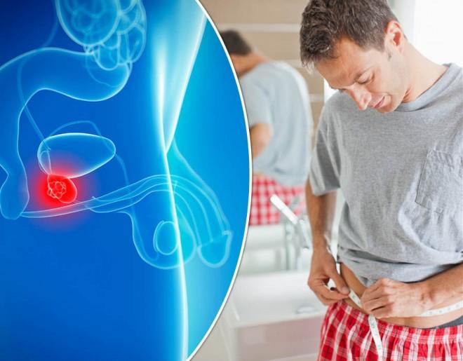 magömlés hány éves korig C- vitamin a prostatitisből